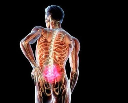 Периневральная киста позвоночника: виды, причины и эффективные методы лечения