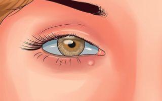 Киста на глазу: симптомы, причины, все виды лечения