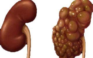 Многокамерная киста почки: причины, симптомы, лечение