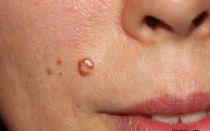 Папилломы и бородавки: отличие, сходство и лечение