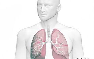 Фиброз легких: причины и симптомы, методы лечения, профилактические меры