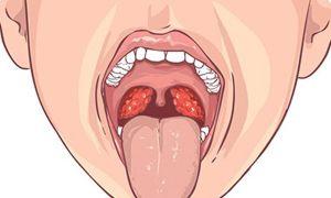 Киста миндалины: причины и симптомы, возможные осложнения, лечение новообразования