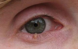 Папиллома на веках глаз
