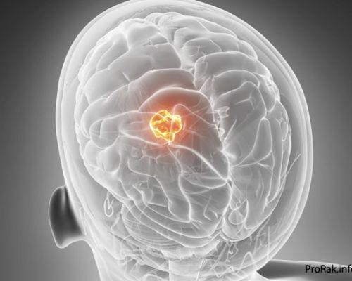 Рак мозга: виды патологии, причины и симптомы, стадии рака и методы лечения