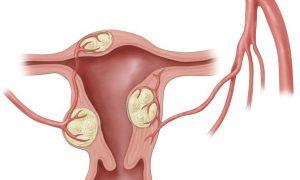 Лечение миомы народными средствами