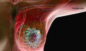 Кисты на молочных железах: разновидности и симптомы, методы лечения и последствия новообразований