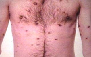 Саркома Капоши: причины и виды, симптомы и лечение, прогноз и профилактика