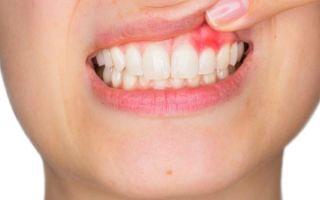 Киста на десне: симптомы, причины возникновения и методы лечения