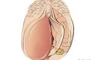Киста на бартолиновой железе: причины, признаки, лечение, влияние на беременность