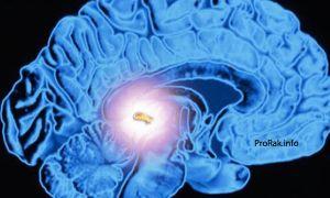 Киста шишковидной железы: суть патологии и симптоматика, опасность и основные виды лечения