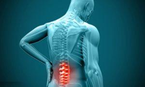 Рак позвоночника: симптомы и причины, основные методы и прогноз патологии