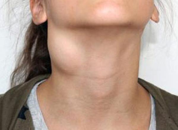 Причины симптомы и лечение срединной кисты шеи у ребенка и взрослого
