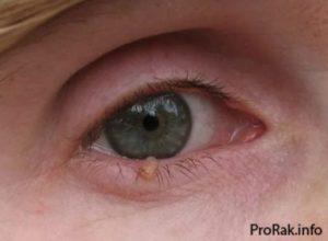 Папиллома возле глаза — ooncologiya