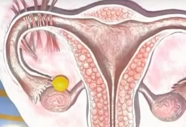 киста желтого тела яичника