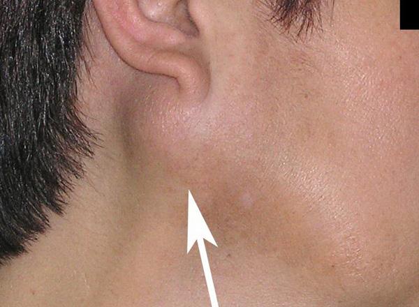 Отек губы ретенционная киста